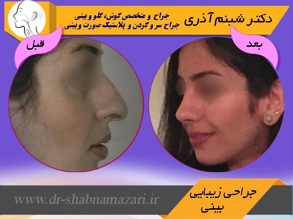 عکس قبل و بعد از جراحی بینی- زیبایی بینی