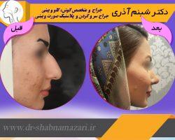 دکتر شبنم اذری-عکس قبل و بعد از عمل2