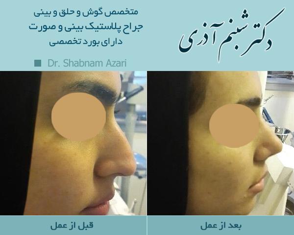 گالری عکس جراحی بینی - دکتر شبنم اذری