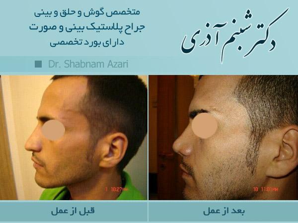 جراحی گالری عکس جراحی بینی - دکتر شبنم اذری