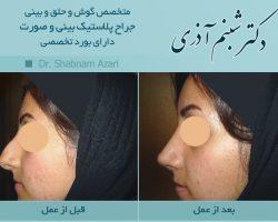 جراحی بینی دکتر شبنم اذری-عکس قبل و بعد از عمل2