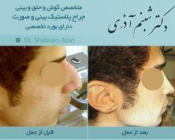 دکتر شبنم اذری-عکس قبل و بعد از عمل2بینی