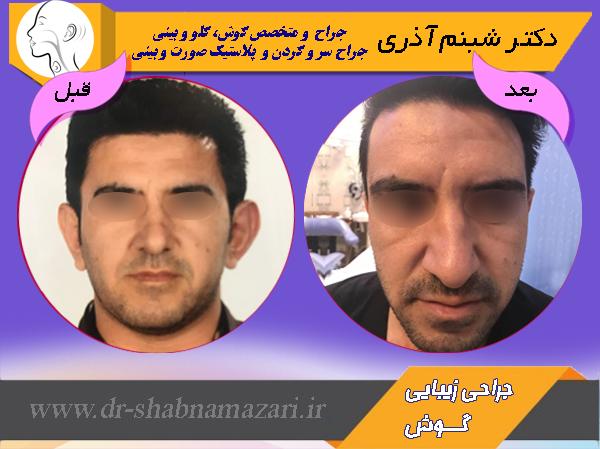 دکتر شبنم اذری-جراحی زیبایی گوش - اوپلاستی 1